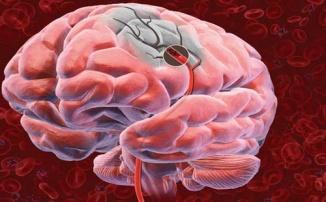 repere_medicale_ro_accident_vascular_cerebral